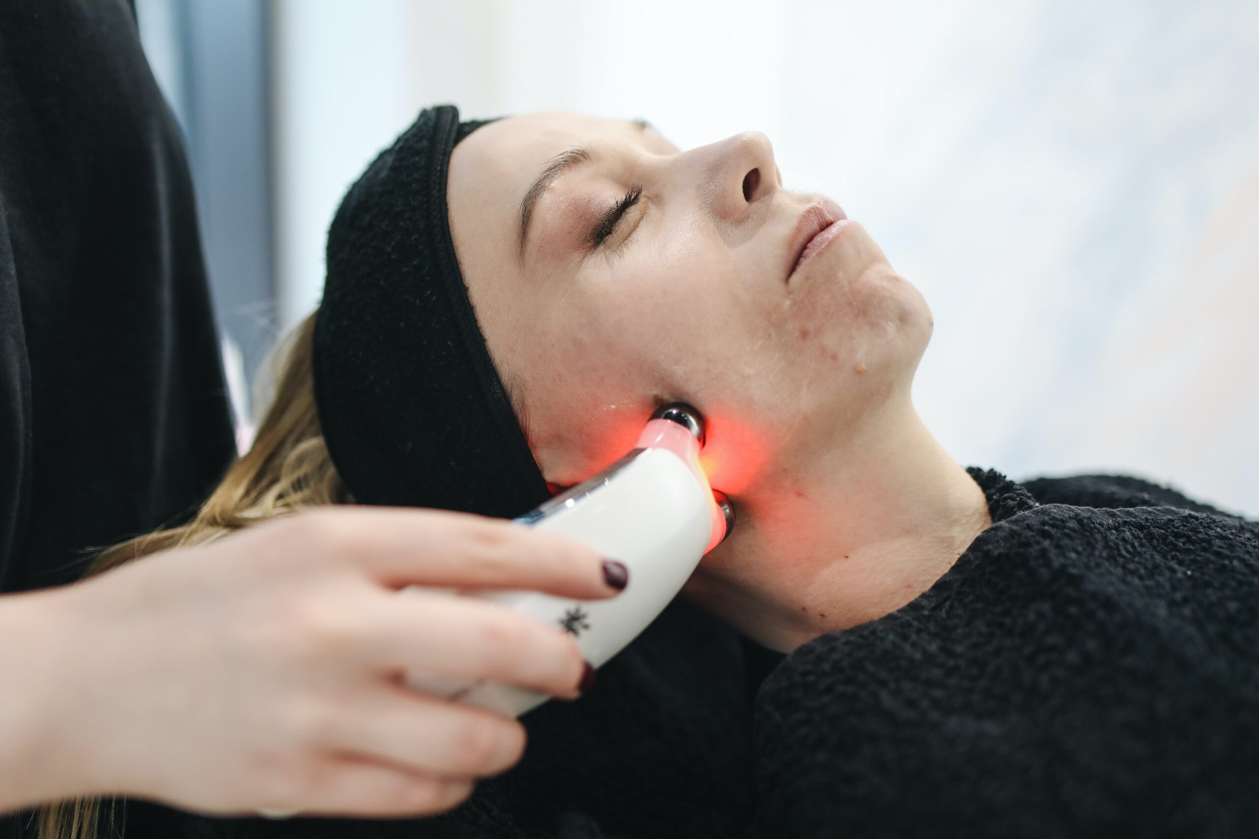 Hyperpigmentation Laser Treatment on Face