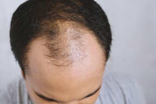 What Are The Main Causes Of Alopecia?